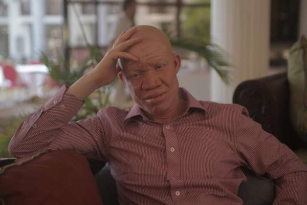 African Elites Hunt down Human Albinos to Eat Them in
